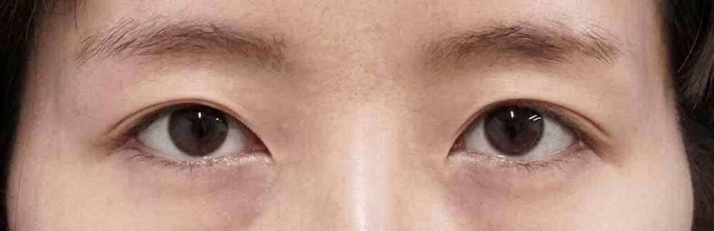 切らない眼瞼下垂手術 1ヶ月後のAfterの写真