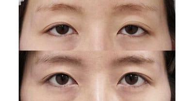 切らない眼瞼下垂手術 1ヶ月後