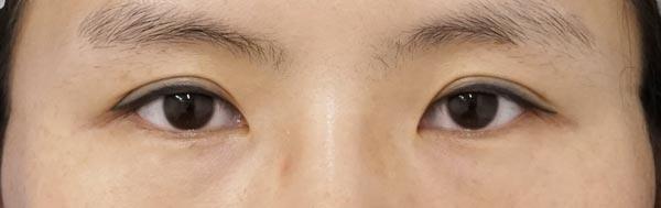 デカ目2点セット(切らない眼瞼下垂、切らないタレ目) 3ヶ月後のBefore写真