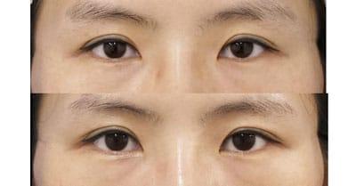 デカ目2点セット(切らない眼瞼下垂、切らないタレ目) 3ヶ月後