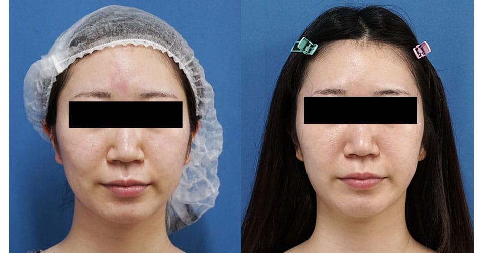 小顔脂肪吸引(ホホ・アゴ下・ほうれい線上) 3ヶ月後