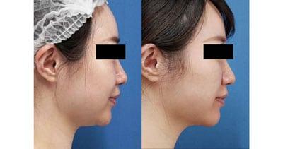 小顔脂肪吸引(ホホ・アゴ下・法令線上) 1ヶ月後