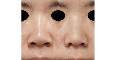 鼻翼縮小(内側法+外側法)、鼻尖縮小、軟骨移植、ストラット 1ヶ月後