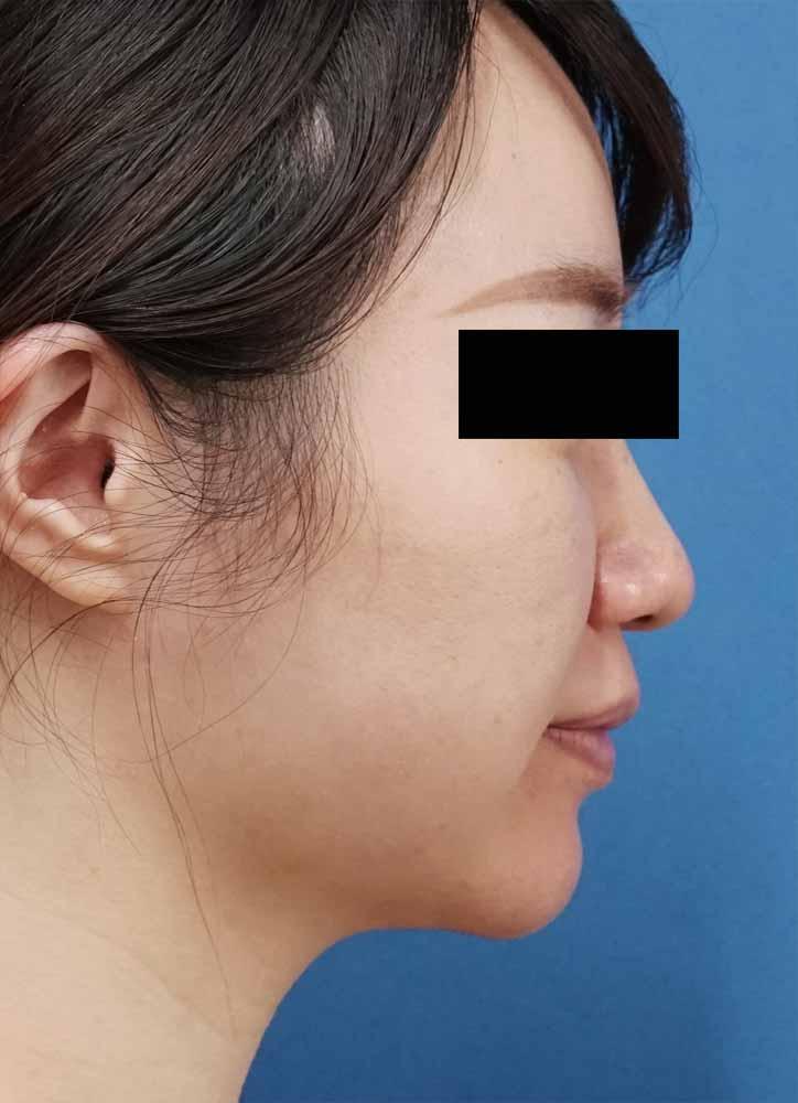 小顔脂肪吸引(ホホ・アゴ下・法令線上) 1ヶ月後のAfterの写真