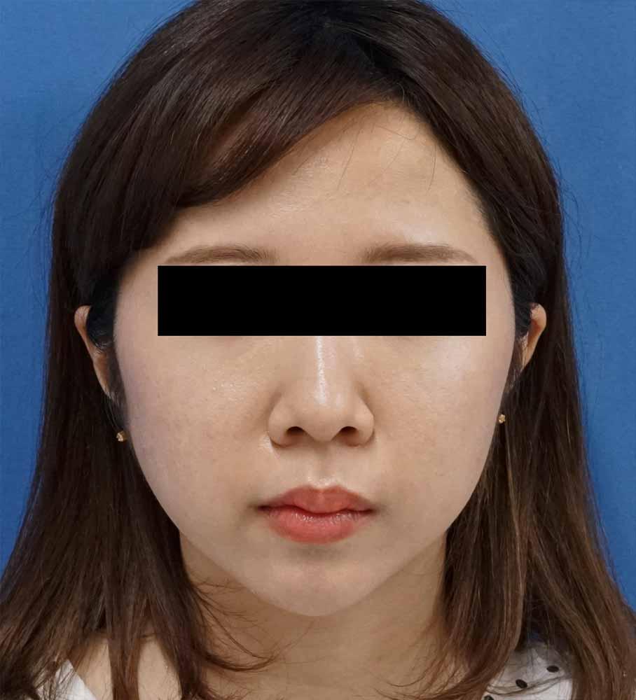 バッカルファット除去術 1ヶ月後のAfterの写真