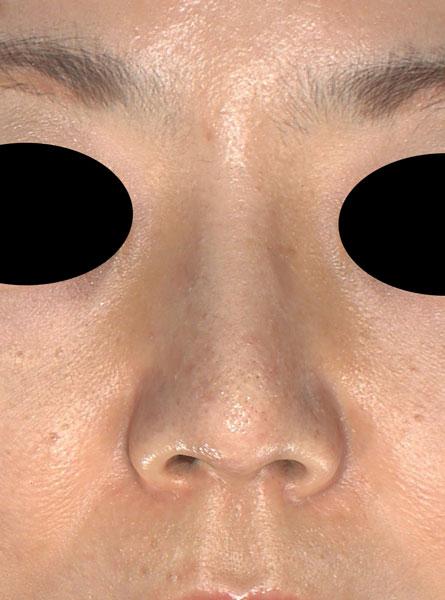 鼻尖縮小、軟骨移植、プロテーゼ 正面 3ヶ月後