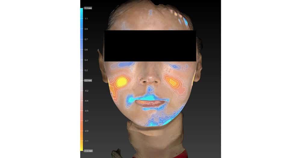 小顔脂肪吸引(ほうれい線上) 半年後