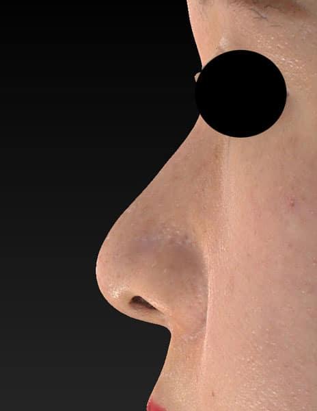 鼻尖縮小(3D法)、軟骨移植 半年後 左側面のAfterの写真