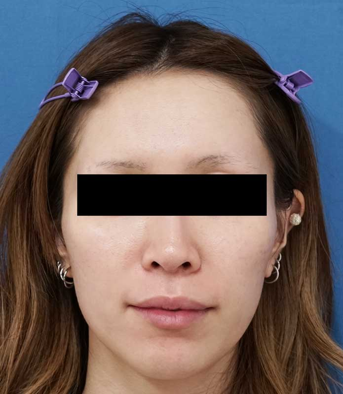 HIFU(ハイフ)顔全体 1週間後のBefore写真