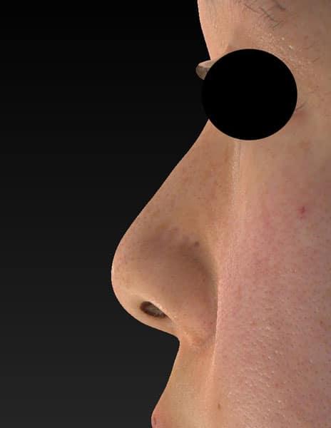 鼻尖縮小(3D法)、軟骨移植 半年後 左側面のBefore写真