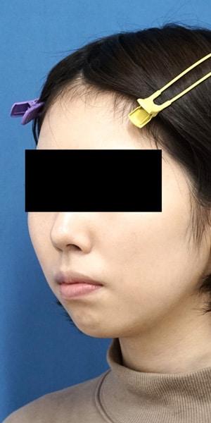クレヴィエルコントア(顎)1週間後のBefore写真