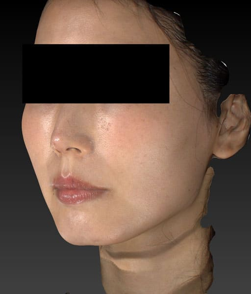 小顔脂肪吸引(ほうれい線上) 左斜め 半年後