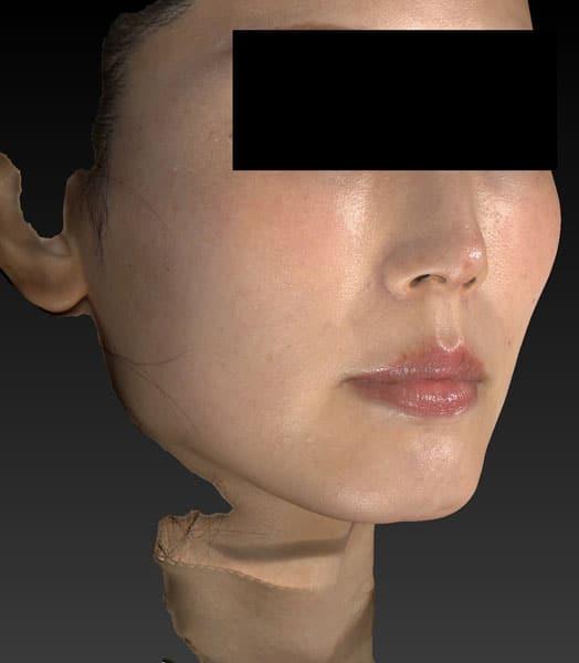 小顔脂肪吸引(ほうれい線上) 半年後のAfterの写真