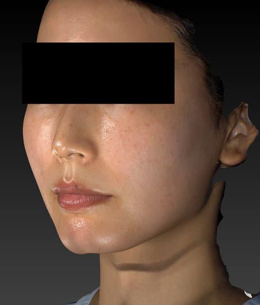 小顔脂肪吸引(ほうれい線上) 左斜め 手術前