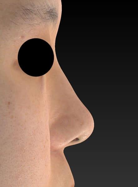 鼻尖縮小、軟骨移植、ストラット 右側面 半年後のBefore写真