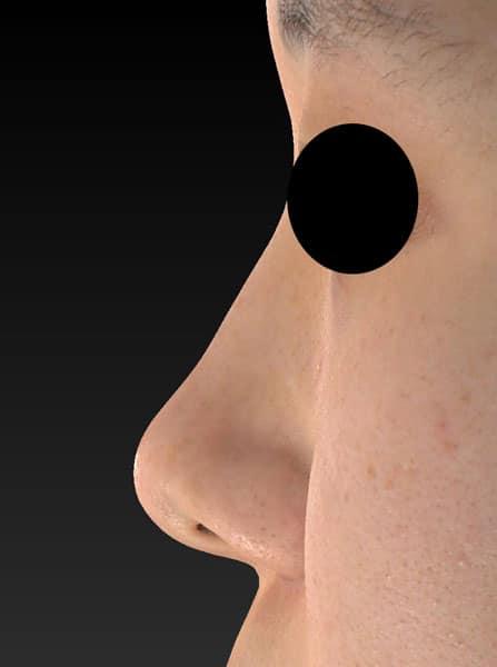 鼻尖縮小、軟骨移植、ストラット 左側面 半年後のBefore写真
