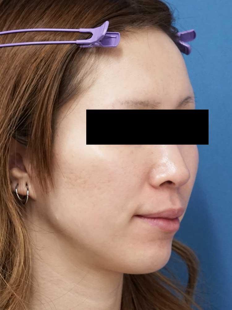 HIFU(ハイフ)顔全体 右斜め 手術前