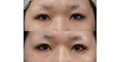 切らないデカ目2点セット(眼瞼下垂+タレ目) 1ヶ月後