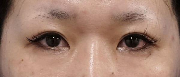 切らないデカ目2点セット(眼瞼下垂+タレ目) 1ヶ月後のAfterの写真