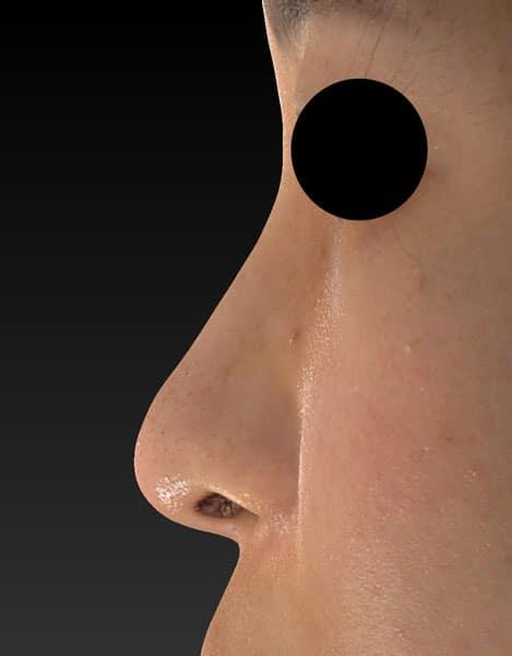 鼻尖縮小、軟骨移植 半年後のAfterの写真