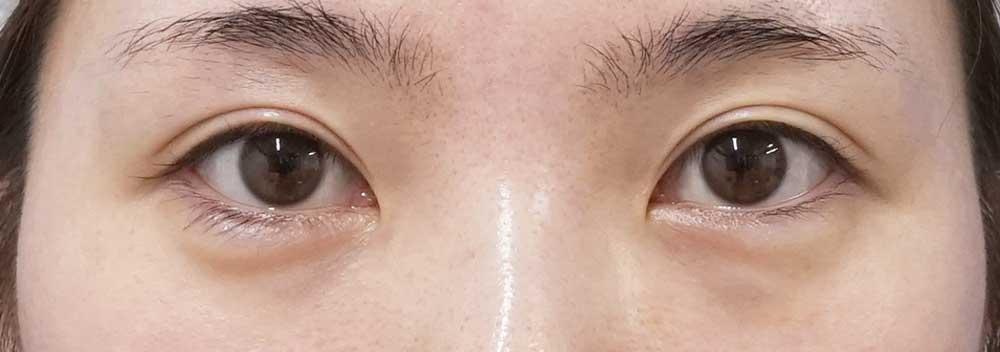 下眼瞼下制、目尻切開 6か月後のBefore写真