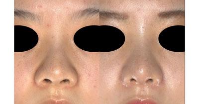 鼻尖縮小、軟骨移植、 鼻翼縮小(内側+外側) 半年後