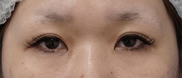 切らないデカ目2点セット(眼瞼下垂+タレ目) 1ヶ月後のBefore写真