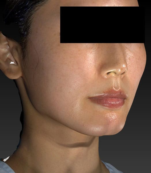 小顔脂肪吸引(ほうれい線上) 右斜め 手術前