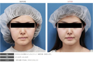バッカルファット除去術の症例写真