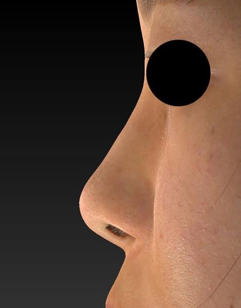 鼻尖縮小、軟骨移植 半年後のBefore写真