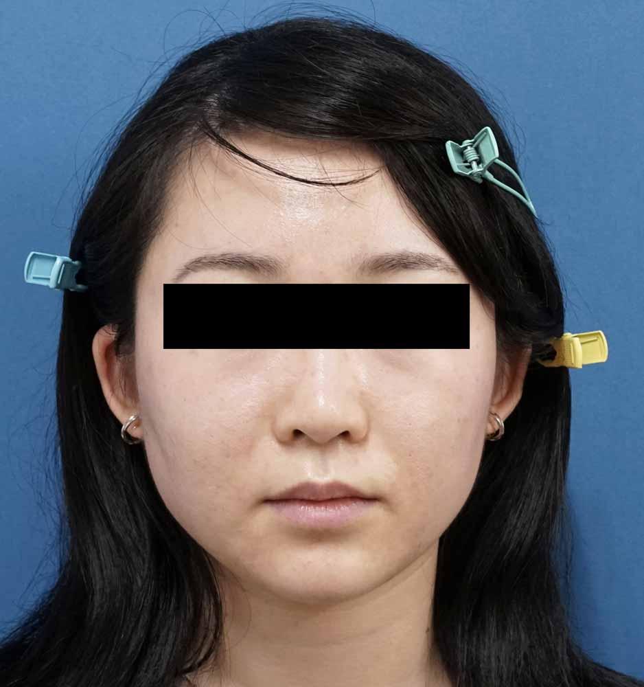 アラガン社強力小顔ボトックス 1ヶ月後のBefore写真