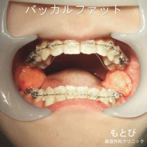 口の中のバッカルファット