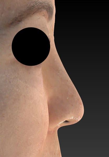 鼻尖縮小、軟骨移植、プロテーゼ 右側面 3ヶ月後