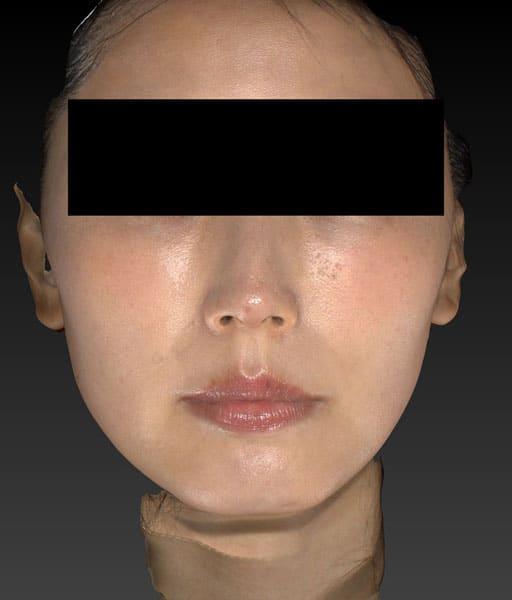 小顔脂肪吸引(ほうれい線上) 正面 半年後