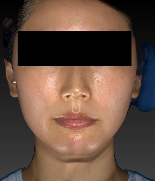 小顔脂肪吸引(ほうれい線上) 正面 手術前
