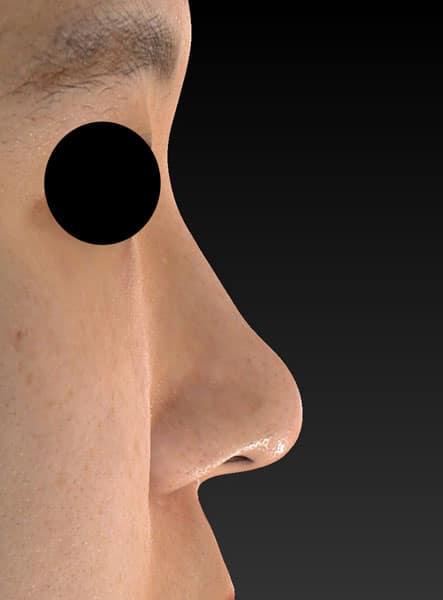 鼻尖縮小、軟骨移植、ストラット 右側面 半年後のAfterの写真