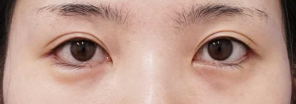 下眼瞼下制、目尻切開 6か月後のAfterの写真