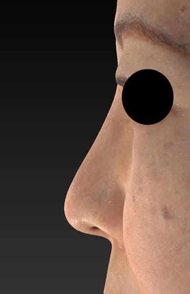 鼻尖縮小、軟骨移植、プロテーゼ 左側面 3ヶ月後