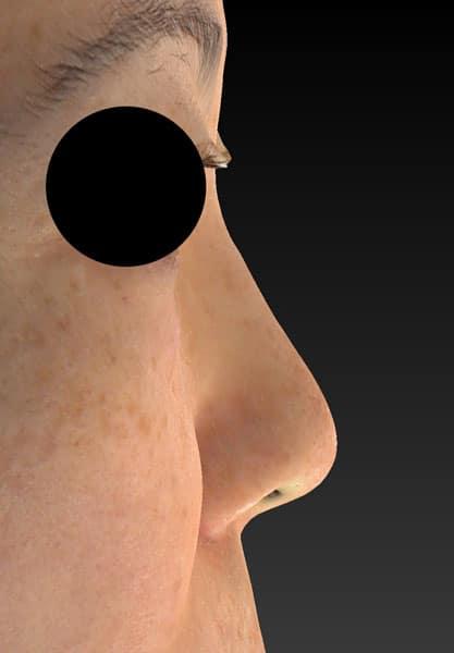 鼻尖縮小、軟骨移植、プロテーゼ 右側面 手術前