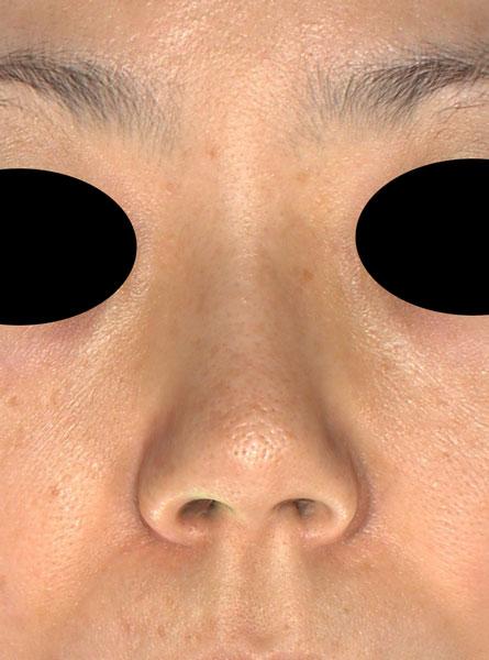鼻尖縮小、軟骨移植、プロテーゼ 正面 手術前
