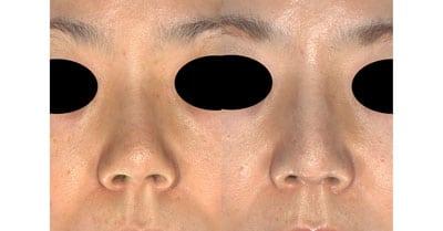 鼻尖縮小、軟骨移植、プロテーゼ 3ヶ月後