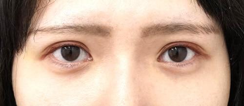 涙袋ヒアルロン酸1週間後のAfterの写真