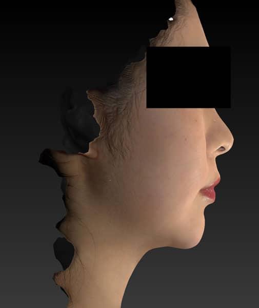 切らない強力小顔3点セット 半年後のAfterの写真