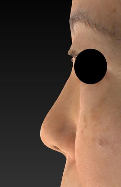 鼻尖縮小、軟骨移植、プロテーゼ 左側面 手術前