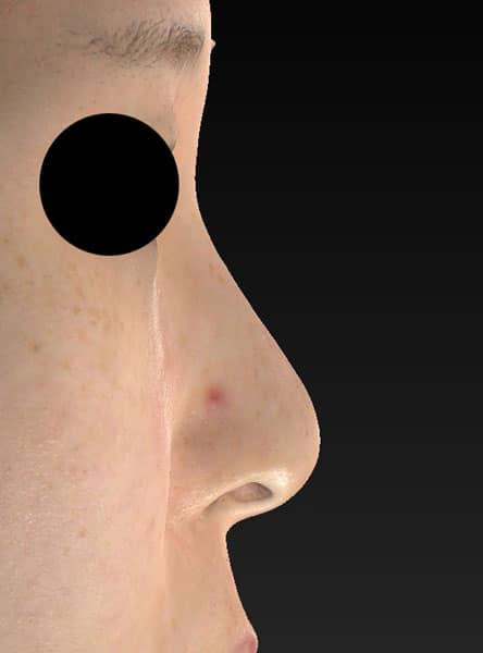 鼻尖縮小、軟骨移植、ストラット 右側面 手術前
