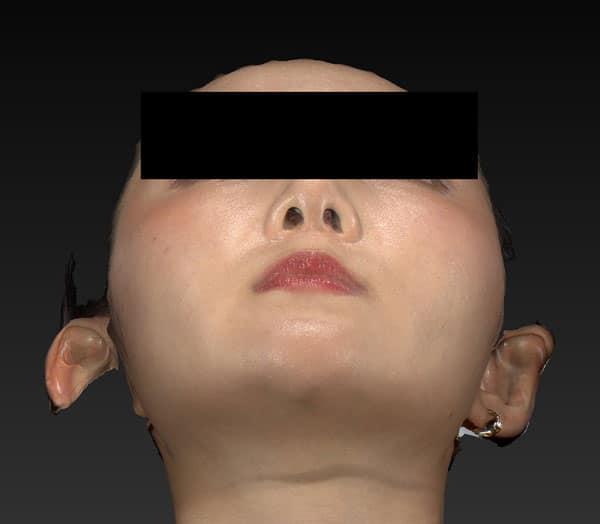 小顔脂肪吸引(ホホ・アゴ下・ほうれい線上) 半年後 下から