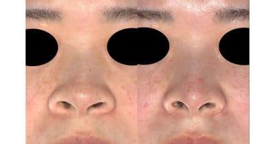鼻尖縮小、軟骨移植、鼻翼縮小(内側+外側) 3ヶ月後