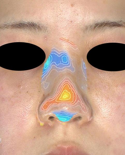 切らない鼻尖延長(ミスコ)8本 正面の変化