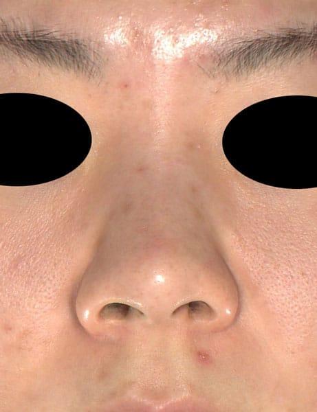 鼻尖縮小、軟骨移植、ストラット、鼻翼縮小(内側+外側) 正面 手術前