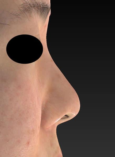 鼻尖縮小、軟骨移植、ストラット、鼻翼縮小(内側+外側) 右側面 手術前